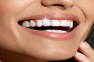 لمینت دندانی