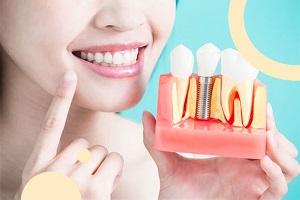 ایمپلنت دندانی چیست؟