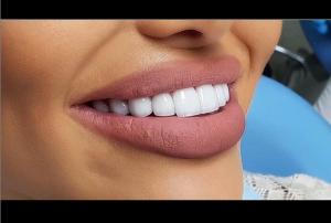 کامپوزیت دندان چیست