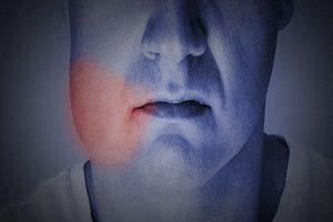 ورم صورت بعد از ايمپلنت دندان