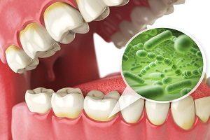 آیا روکش دندان باعث بوی بد دهان می شود