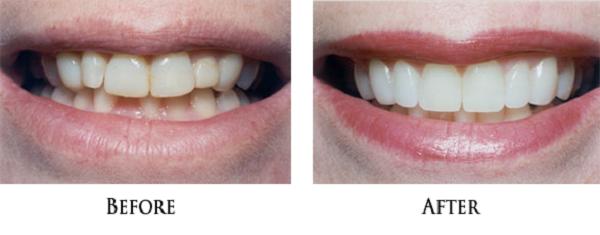 مزایای استفاده از لیمنت دندان