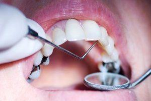 کامپوزیت پشت دندان