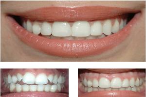 کامپوزیت برای دندان کج
