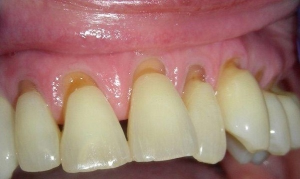 پوسیدگی دندان کامپوزیت شده