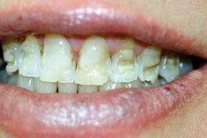 کامپوزیت برای دندان ضرر دارد؟