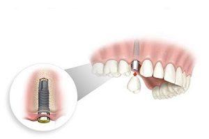 ایمپلنت دندان فوری