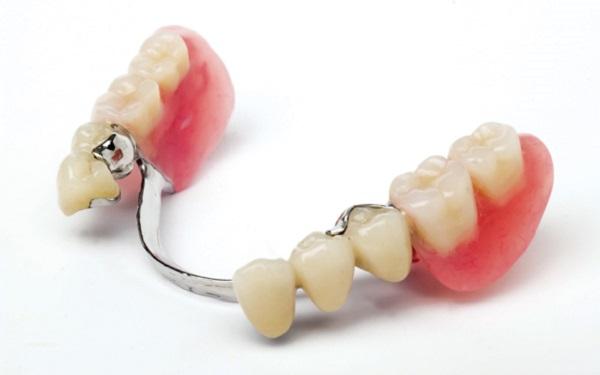 مزایا و معایب پروتز ثابت دندان