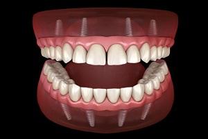 انواع اوردنچر دندانی