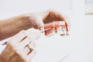 مزایای ایمپلنت دندان شامل چه مواردی می شود؟