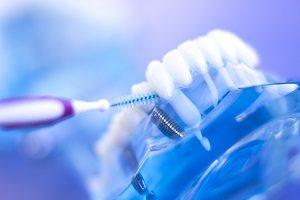 مراقبت بعد از ایمپلنت دندان شامل چه مواردی می شود؟
