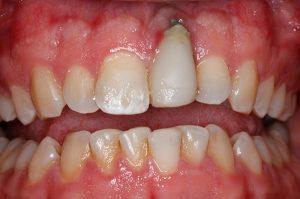 علل ایجاد عوارض ایمپلنت دندان و نحوه مواجه با این عوارض