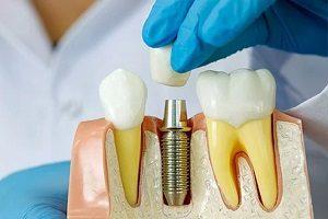 نحوه انجام ایمپلنت دندان