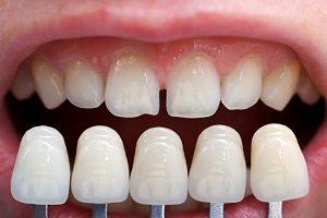 لمینت دندان به چه صورت انجام می شود؟
