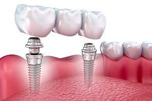 کاشت دندان بدون ایمپلنت امکان پذیر می باشد؟