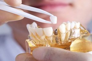 ایمپلنت دندان و آنچه باید درباره آن بدانید