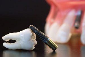 ایمپلنت اقساطی دندان