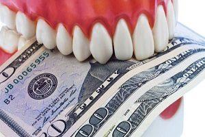 قیمت ایمپلنت دندان هر دو فک تحت تاثیر چه عوامل است؟