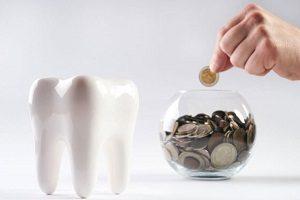 هزینه انجام ایمپلنت دندان چگونه محاسبه می شود؟