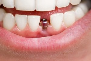 استفاده از ایمپلنت دندان شامل چه موارد و شرایطی می شود؟