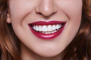 لمینت دندان برای چه افرادی مناسب است