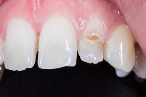 لمینت دندان های خراب