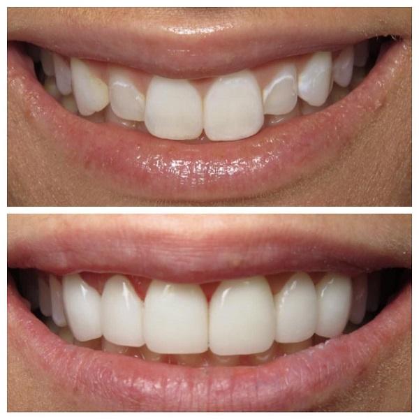 مزایای کامپوزیت دندان