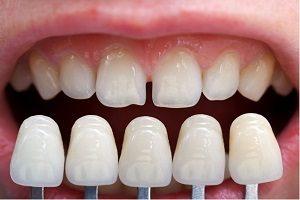مراحل کامپوزیت دندان به چه صورت انجام می گیرد؟