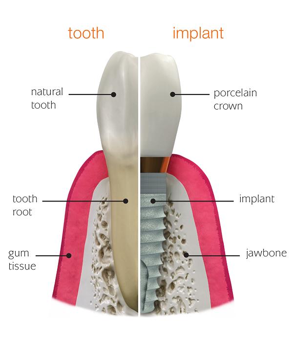 فیکسچر ایمپلنت دندان