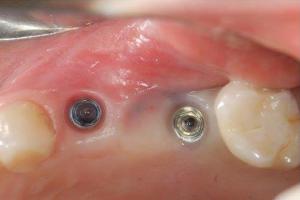 عفونت پیچ ایمپلنت دندان چه علائمی دارد؟