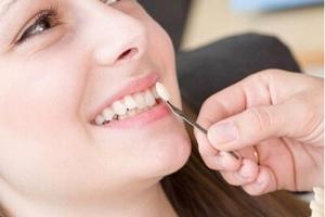 کامپوزیت ونیر دندان چیست و چه تفاوتی با کامپوزیت دندان دارد؟