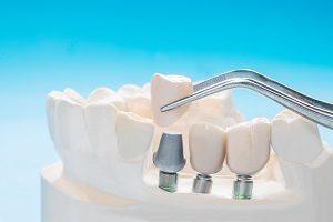 افتادن روکش ایمپلنت دندان چه دلایلی دارد؟