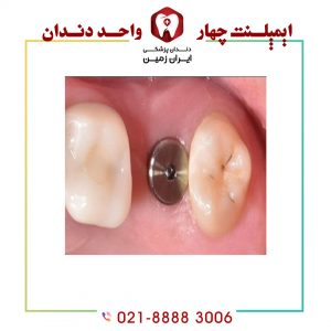 هیلینگ ایمپلنت دندان چیست؟