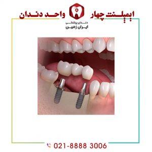 ایمپلنت چند دندان در کنار هم امکان پذیر است؟
