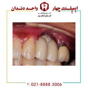 علائم عفونت ایمپلنت دندان شامل چه مواردی می شود؟