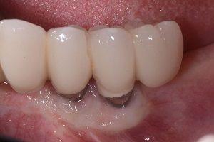 علائم عفونت ایمپلنت دندان چیست و عفونت چه زمانی خود را نشان می دهد؟