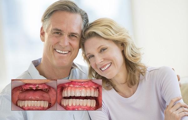 بهترین مرکز ایمپلنت دندان در غرب