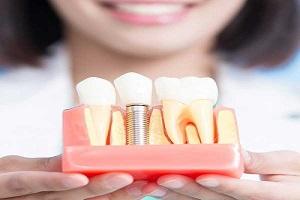 بهترین متخصص ایمپلنت دندان چه ویژگی هایی دارد؟