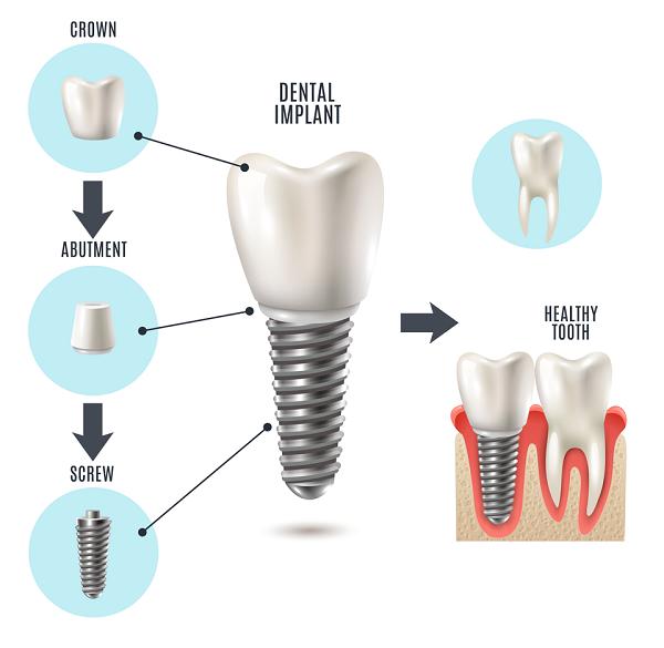 اباتمنت در ایمپلنت دندان
