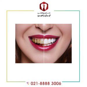 مزایای لمینت دندان شامل چه مورادی است؟