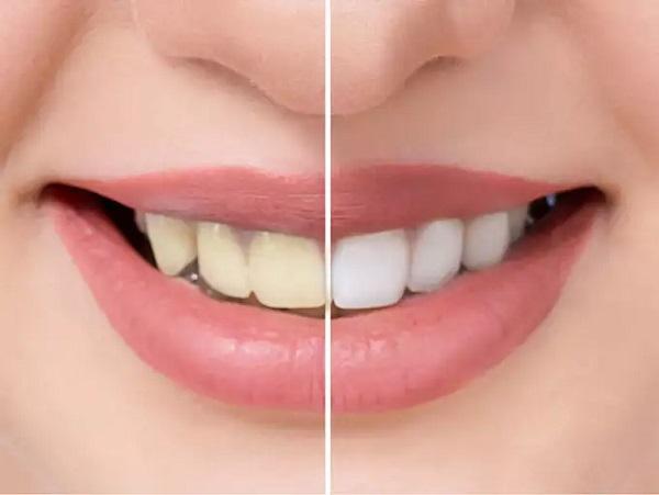 مراقبت از کامپوزیت دندان - کلینیک ایران زمین