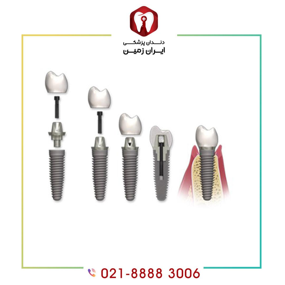 اجزای ایمپلنت دندان چیست و از چه موادی ساخته می شوند؟