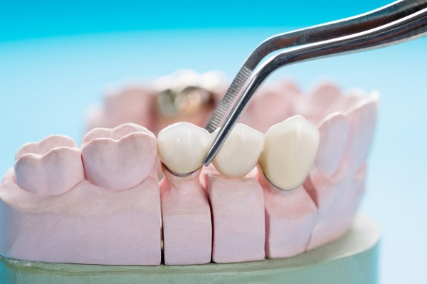 مراحل قالب گیری ایمپلنت دندان