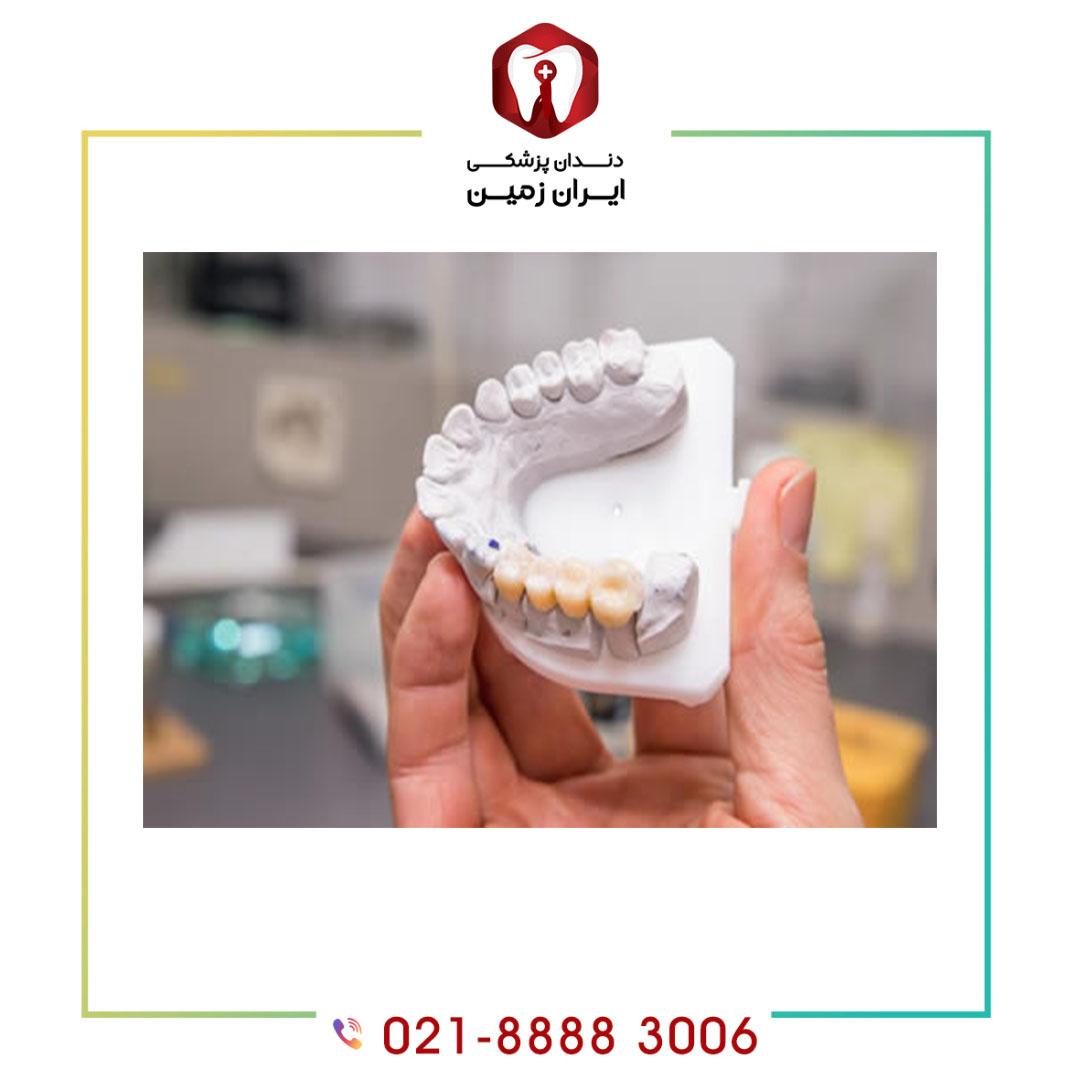 مراحل قالب گیری ایمپلنت برای تهیه روکش دندان به چه صورت است؟