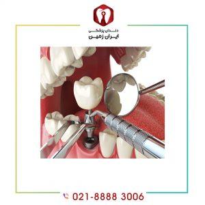 روش کاشت ایمپلنت دندان به چه صورت تعیین می شود؟