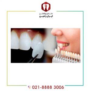 لمینت به صورت قسطی می تواند با صرف کمترین هزینه دندان های شما را زیبا نماید