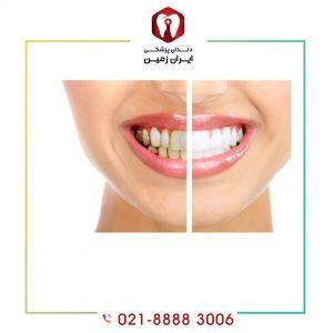 ترمیم لمینت دندان چه زمانی ضررت می یابد؟