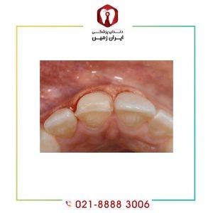 معایب کامپوزیت دندان شما را از انجام آن منصرف نمی کند