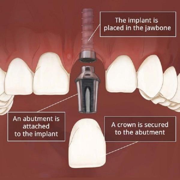 قیمت ایمپلنت دندان فوری