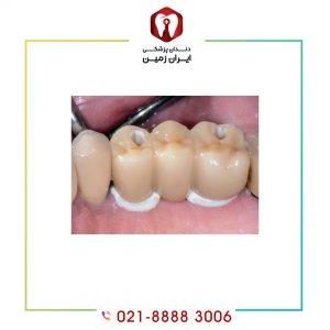 قیمت چسب دندان ایمپلنت چقدر است؟